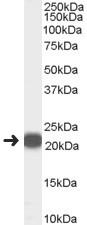 Western blot - Anti-PBP antibody (ab118811)
