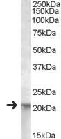 Western blot - Anti-NRAS antibody (ab118814)