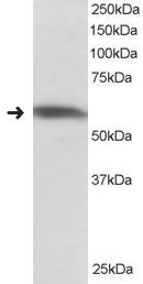 Western blot - Anti-PTBP1  antibody (ab118818)