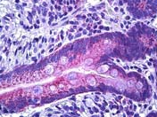 Immunohistochemistry (Formalin/PFA-fixed paraffin-embedded sections) - Anti-IRS1 antibody (ab118846)