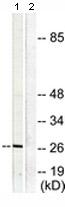 Western blot - Anti-Galectin 3 antibody (ab118851)