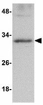 Western blot - Anti-GNPDA2  antibody (ab118861)