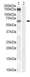 Western blot - Anti-Monoamine Oxidase B antibody (ab118865)