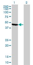 Western blot - Anti-Non Neuronal Enolase antibody [8G8] (ab118866)