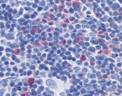 Immunohistochemistry (Formalin/PFA-fixed paraffin-embedded sections) - Anti-IL17 antibody (ab118869)