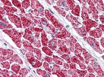 Immunohistochemistry (Formalin/PFA-fixed paraffin-embedded sections) - Anti-VDAC2 antibody (ab118872)