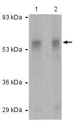 Western blot - Anti-TEM7 antibody (ab118874)