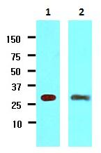Western blot - Anti-14-3-3 gamma antibody [J3H10] (ab118877)