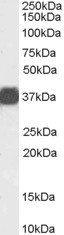 Western blot - Anti-liver Arginase antibody (ab118884)