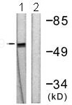 Western blot - Anti-SOX9 antibody (ab118892)