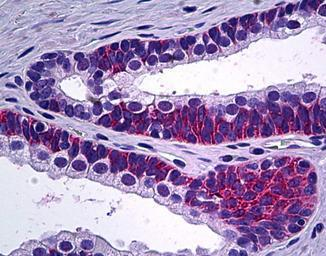 Immunohistochemistry (Formalin/PFA-fixed paraffin-embedded sections) - Anti-PPP3CC antibody (ab118893)