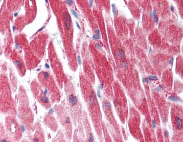 Immunohistochemistry (Formalin/PFA-fixed paraffin-embedded sections) - Anti-MYL9 antibody (ab118896)