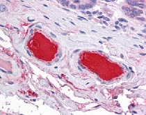 Immunohistochemistry (Formalin/PFA-fixed paraffin-embedded sections) - Anti-C9 antibody (ab118902)