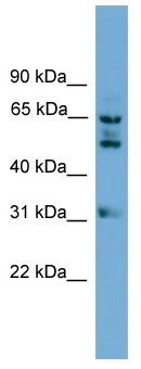Western blot - Anti-WDR16 antibody (ab118921)