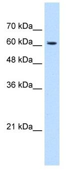 Western blot - Anti-KIAA0319 antibody (ab118923)