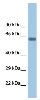 Western blot - Anti-Glycine Receptor alpha 3 antibody (ab118924)