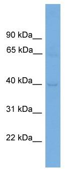 Western blot - Anti-CNTD antibody (ab118925)