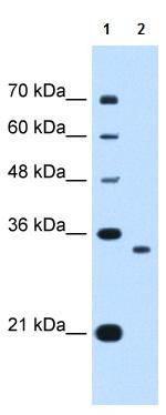 Western blot - Anti-NDRG2 antibody (ab118927)