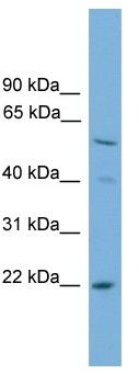 Western blot - Anti-HSPC150 antibody (ab118931)