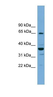 Western blot - Anti-TH1L antibody (ab118932)