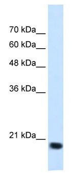 Western blot - Anti-SSR2 antibody (ab118937)