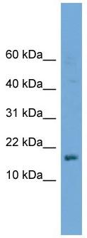 Western blot - Anti-HSPC210 antibody (ab118941)
