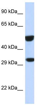 Western blot - Anti-ETS2 antibody (ab118945)