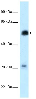 Western blot - Anti-HSF2 antibody (ab118949)