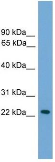 Western blot - Anti-RAB39 antibody (ab118952)