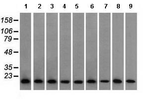 Western blot - Anti-Profilin 1 antibody [1D5] (ab118984)