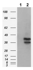 Western blot - Anti-DAP Kinase 2 antibody [1B10] (ab119035)