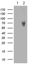 Western blot - Anti-LIM Kinase 1 antibody [3G3] (ab119084)