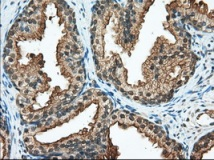 Immunohistochemistry (Formalin/PFA-fixed paraffin-embedded sections) - Anti-RanGAP1 antibody [1B4] (ab119092)