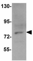 Western blot - Anti-PIAS3 antibody (ab119106)