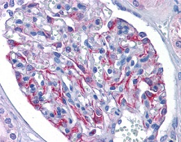Immunohistochemistry (Formalin/PFA-fixed paraffin-embedded sections) - Anti-MAK10 antibody (ab119108)