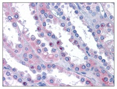 Immunohistochemistry (Formalin/PFA-fixed paraffin-embedded sections) - Anti-MAK10 antibody (ab119112)