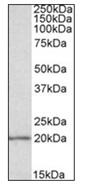 Western blot - Anti-eIF5A antibody (ab119115)