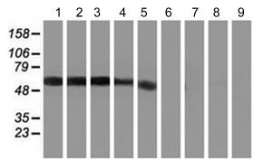 Western blot - Anti-GIRK1 antibody [3E11] (ab119246)