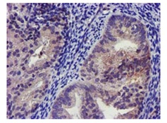 Immunohistochemistry (Formalin/PFA-fixed paraffin-embedded sections) - Anti-GIRK1 antibody [3E11] (ab119246)