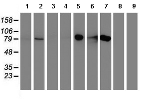 Western blot - Anti-DGKA antibody [8G5] (ab119261)