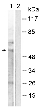 Western blot - Anti-MMP11 antibody (ab119284)