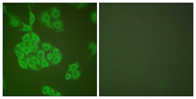 Immunocytochemistry/ Immunofluorescence - Anti-MMP11 antibody (ab119284)