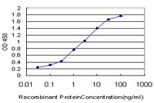 ELISA - Anti-IRAK antibody [3F7] (ab119289)