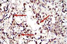Immunohistochemistry (Formalin/PFA-fixed paraffin-embedded sections) - Anti-STAT3 antibody [9D8] (ab119352)