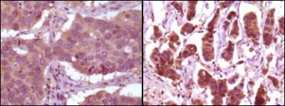 Immunohistochemistry (Formalin/PFA-fixed paraffin-embedded sections) - Anti-ERK2 antibody [4C11] (ab119358)