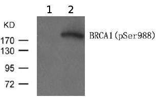 Western blot - Anti-BRCA1 (phospho S988) antibody (ab119381)