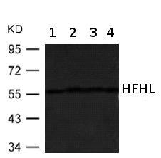 Western blot - Anti-HFH4 antibody (ab119385)