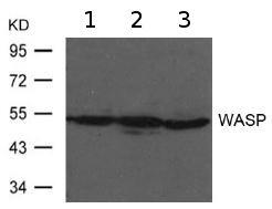 Western blot - Anti-WASP  antibody (ab119387)