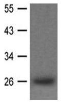 Western blot - Anti-Lin28A antibody (ab119392)