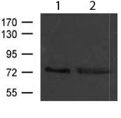 Western blot - Anti-FOXP4 antibody (ab119404)